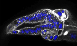 transition zone model. showing Drosophila tissue stained blue